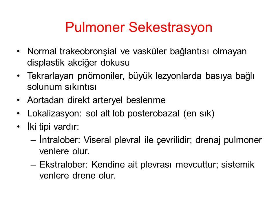 Pulmoner Sekestrasyon Normal trakeobronşial ve vasküler bağlantısı olmayan displastik akciğer dokusu Tekrarlayan pnömoniler, büyük lezyonlarda basıya