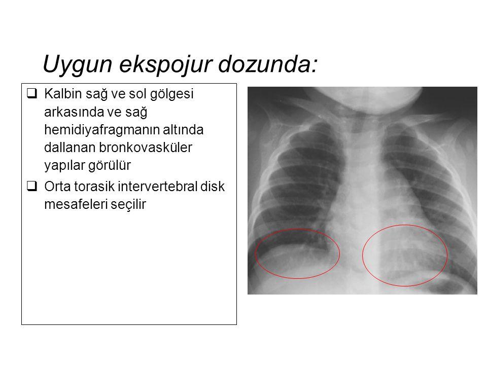 Uygun ekspojur dozunda:  Kalbin sağ ve sol gölgesi arkasında ve sağ hemidiyafragmanın altında dallanan bronkovasküler yapılar görülür  Orta torasik