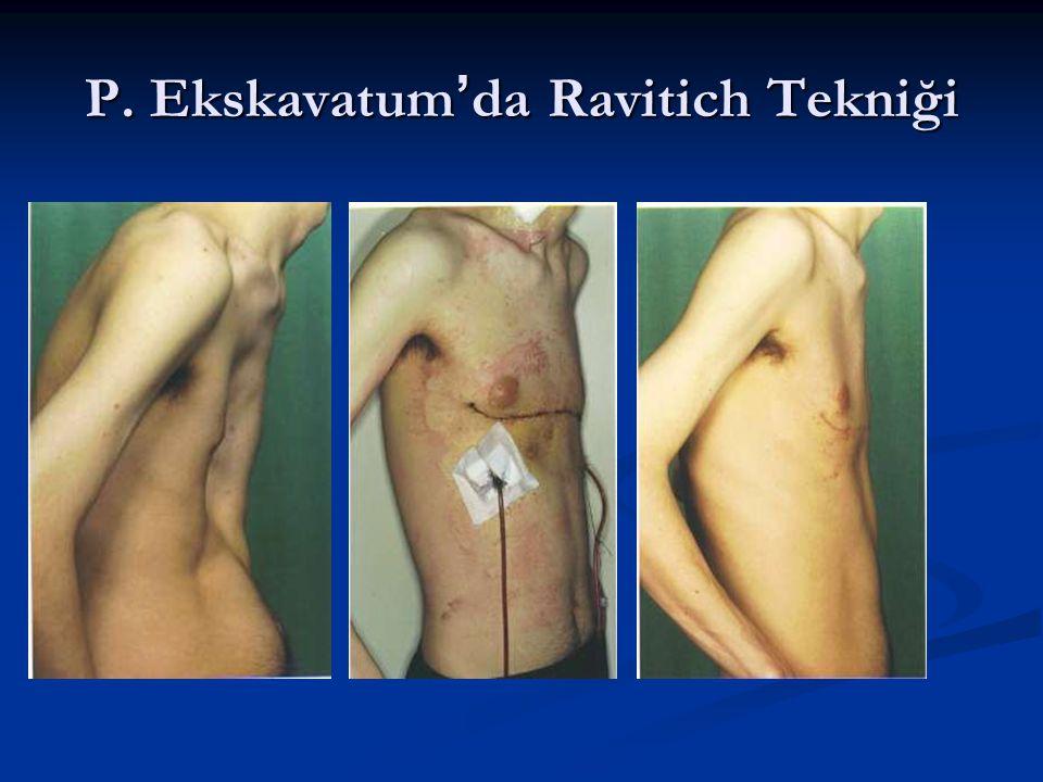 P. Ekskavatum'da Ravitich Tekniği