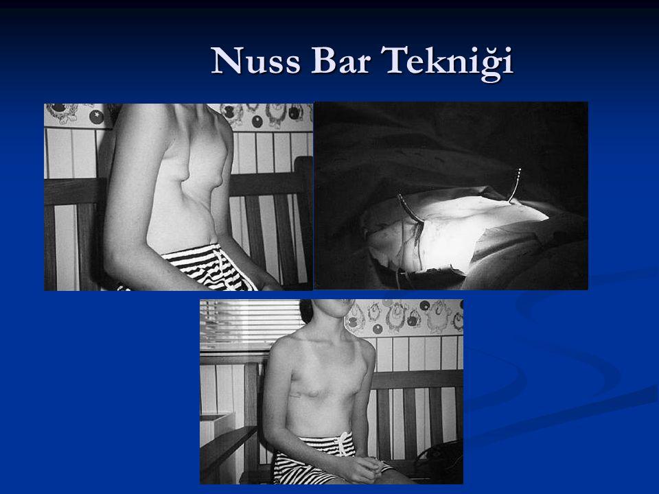 Nuss Bar Tekniği