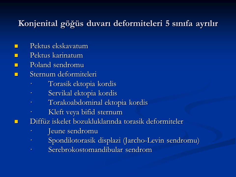 Konjenital göğüs duvarı deformiteleri 5 sınıfa ayrılır Pektus ekskavatum Pektus ekskavatum Pektus karinatum Pektus karinatum Poland sendromu Poland sendromu Sternum deformiteleri Sternum deformiteleri · Torasik ektopia kordis · Servikal ektopia kordis · Torakoabdominal ektopia kordis · Kleft veya bifid sternum Diffüz iskelet bozukluklarında torasik deformiteler Diffüz iskelet bozukluklarında torasik deformiteler · Jeune sendromu · Spondilotorasik displazi (Jarcho-Levin sendromu) · Serebrokostomandibular sendrom