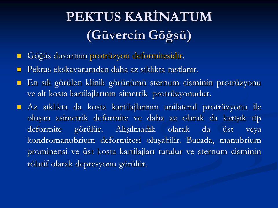 PEKTUS KARİNATUM (Güvercin Göğsü) Göğüs duvarının protrüzyon deformitesidir.
