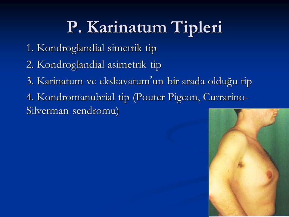 P. Karinatum Tipleri 1. Kondroglandial simetrik tip 2. Kondroglandial asimetrik tip 3. Karinatum ve ekskavatum'un bir arada olduğu tip 4. Kondromanubr