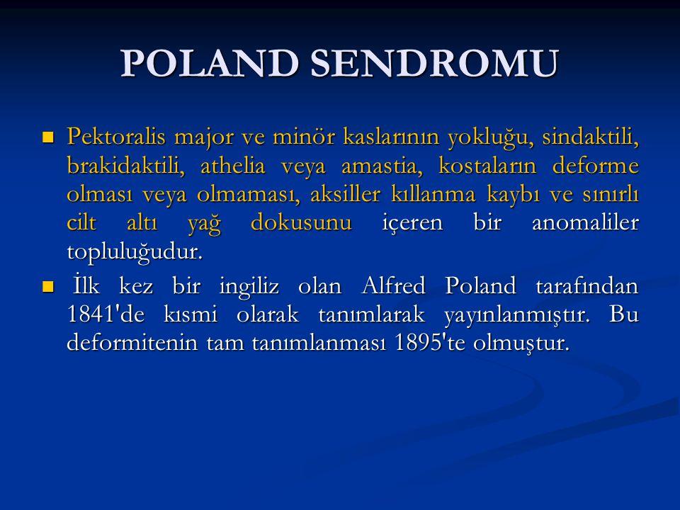 POLAND SENDROMU Pektoralis major ve minör kaslarının yokluğu, sindaktili, brakidaktili, athelia veya amastia, kostaların deforme olması veya olmaması,