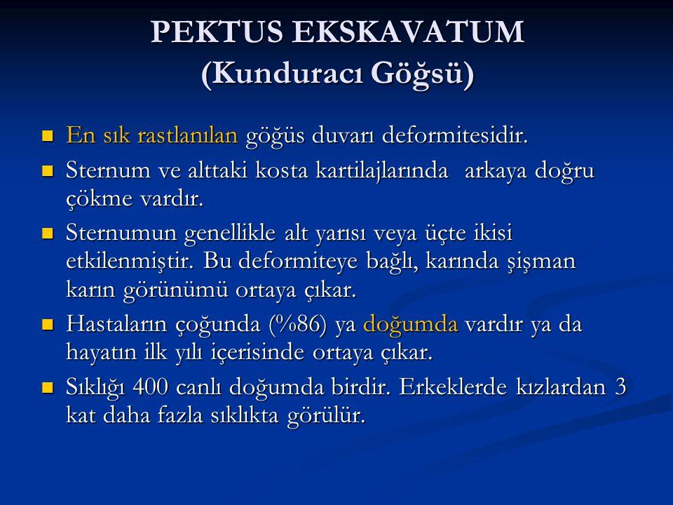 PEKTUS EKSKAVATUM (Kunduracı Göğsü) En sık rastlanılan göğüs duvarı deformitesidir.