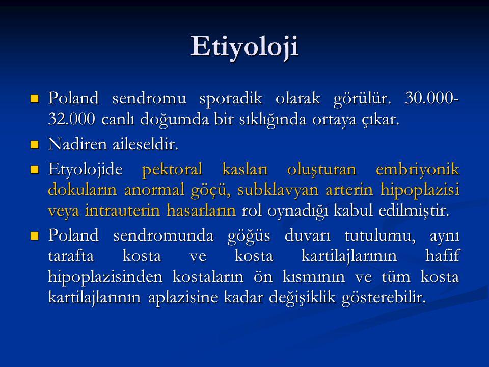 Etiyoloji Poland sendromu sporadik olarak görülür. 30.000- 32.000 canlı doğumda bir sıklığında ortaya çıkar. Poland sendromu sporadik olarak görülür.