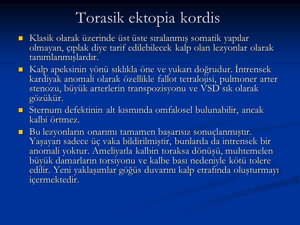 Torasik ektopia kordis Klasik olarak üzerinde üst üste sıralanmış somatik yapılar olmayan, çıplak diye tarif edilebilecek kalp olan lezyonlar olarak tanımlanmışlardır.