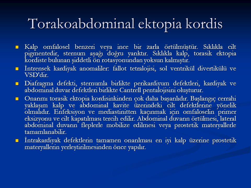 Torakoabdominal ektopia kordis Kalp omfalosel benzeri veya ince bir zarla örtülmüştür. Sıklıkla cilt pigmentedir, sternum aşağı doğru yarıktır. Sıklık