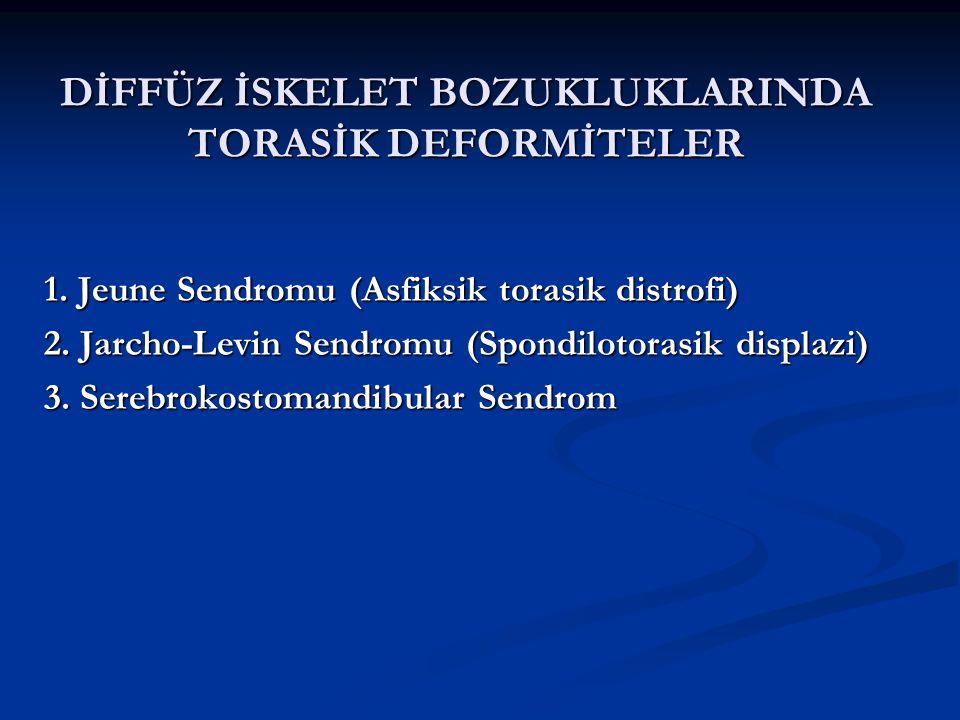 DİFFÜZ İSKELET BOZUKLUKLARINDA TORASİK DEFORMİTELER 1.