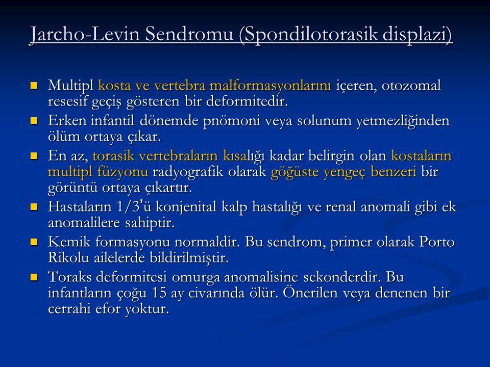 Jarcho-Levin Sendromu (Spondilotorasik displazi) Multipl kosta ve vertebra malformasyonlarını içeren, otozomal resesif geçiş gösteren bir deformitedir.