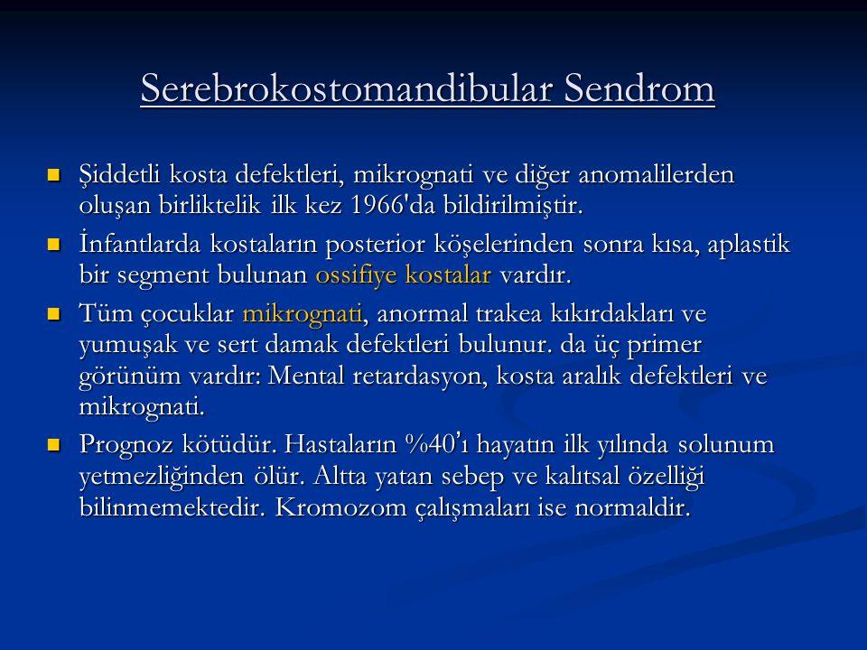 Serebrokostomandibular Sendrom Şiddetli kosta defektleri, mikrognati ve diğer anomalilerden oluşan birliktelik ilk kez 1966 da bildirilmiştir.
