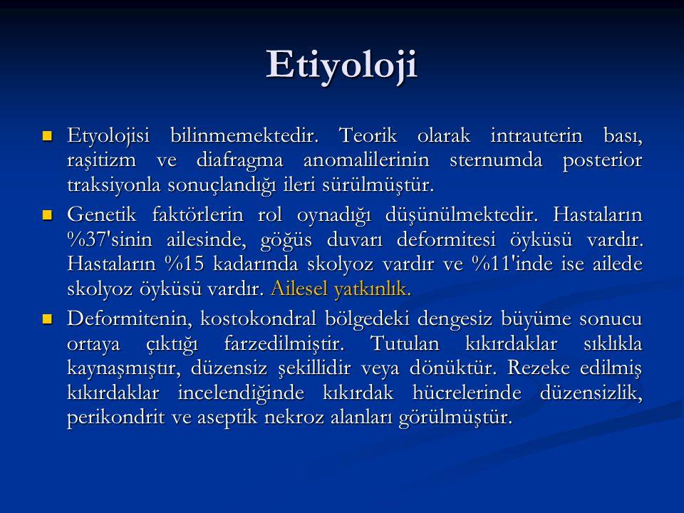 Etiyoloji Etyolojisi bilinmemektedir. Teorik olarak intrauterin bası, raşitizm ve diafragma anomalilerinin sternumda posterior traksiyonla sonuçlandığ