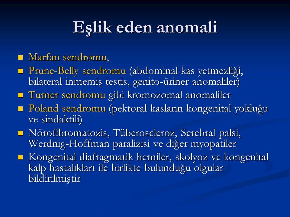 Eşlik eden anomali Marfan sendromu, Marfan sendromu, Prune-Belly sendromu (abdominal kas yetmezliği, bilateral inmemiş testis, genito-üriner anomaliler) Prune-Belly sendromu (abdominal kas yetmezliği, bilateral inmemiş testis, genito-üriner anomaliler) Turner sendromu gibi kromozomal anomaliler Turner sendromu gibi kromozomal anomaliler Poland sendromu (pektoral kasların kongenital yokluğu ve sindaktili) Poland sendromu (pektoral kasların kongenital yokluğu ve sindaktili) Nörofibromatozis, Tüberoscleroz, Serebral palsi, Werdnig-Hoffman paralizisi ve diğer myopatiler Nörofibromatozis, Tüberoscleroz, Serebral palsi, Werdnig-Hoffman paralizisi ve diğer myopatiler Kongenital diafragmatik herniler, skolyoz ve kongenital kalp hastalıkları ile birlikte bulunduğu olgular bildirilmiştir Kongenital diafragmatik herniler, skolyoz ve kongenital kalp hastalıkları ile birlikte bulunduğu olgular bildirilmiştir