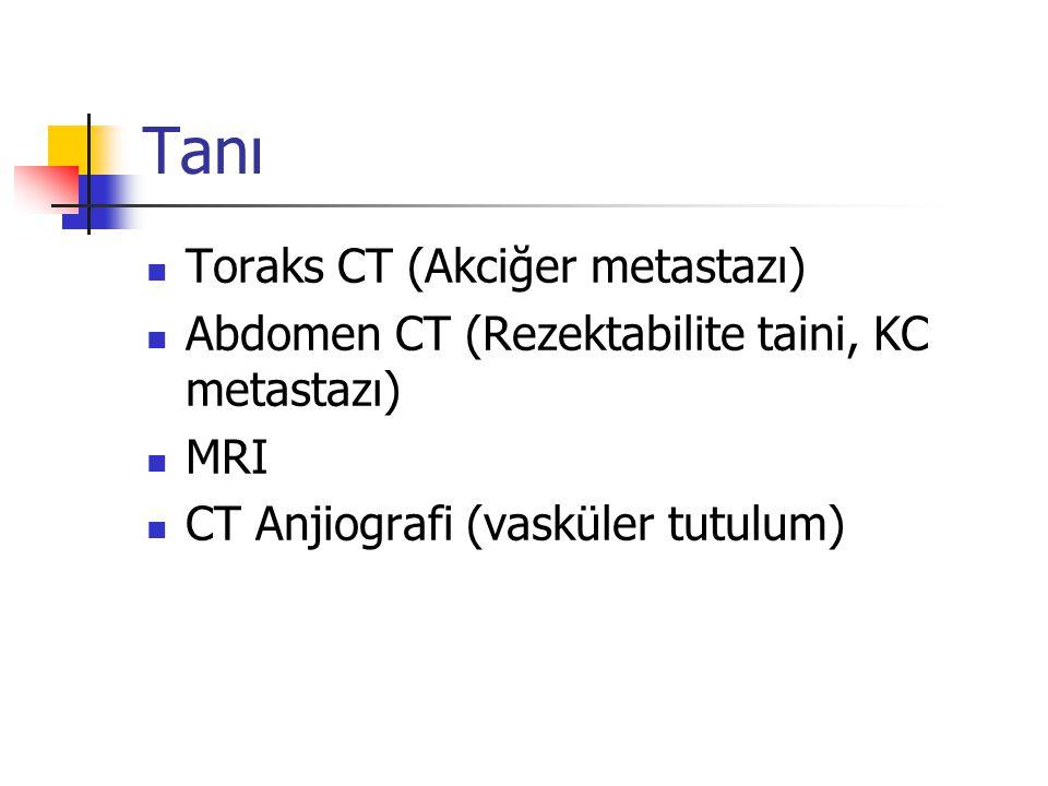 Tanı Toraks CT (Akciğer metastazı) Abdomen CT (Rezektabilite taini, KC metastazı) MRI CT Anjiografi (vasküler tutulum)