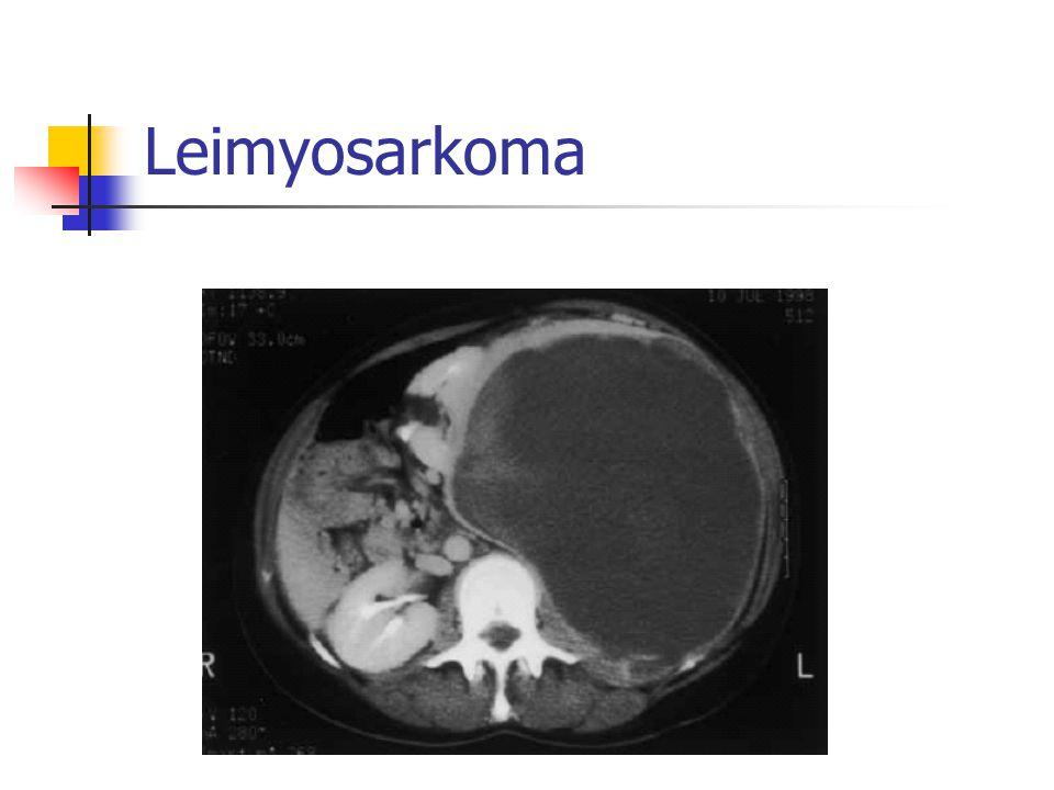 AÜTF Deneyimi %57 primer, %43 nüks olan hasta Olguların hepsine komplet rezeksiyon Median sağ kalım süresi 63 ay 5 yıllık sağ kalım %58 Komplet rezeksiyondan sonra hastalığın evresi prognozu belirleyen en önemli faktör