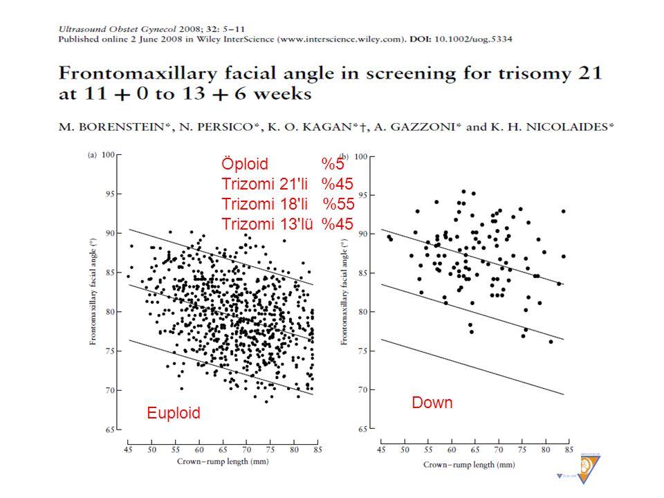 Euploid Down Öploid %5 Trizomi 21 li %45 Trizomi 18 li %55 Trizomi 13 lü %45