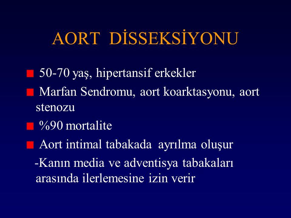 AORT DİSSEKSİYONU 50-70 yaş, hipertansif erkekler Marfan Sendromu, aort koarktasyonu, aort stenozu %90 mortalite Aort intimal tabakada ayrılma oluşur