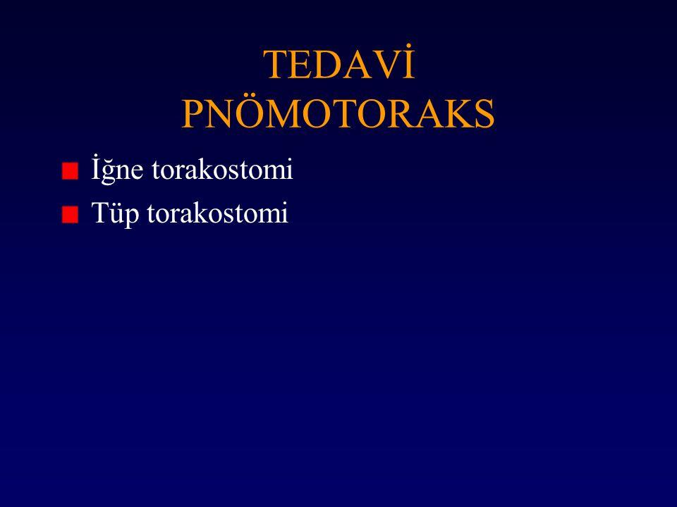TEDAVİ PNÖMOTORAKS İğne torakostomi Tüp torakostomi