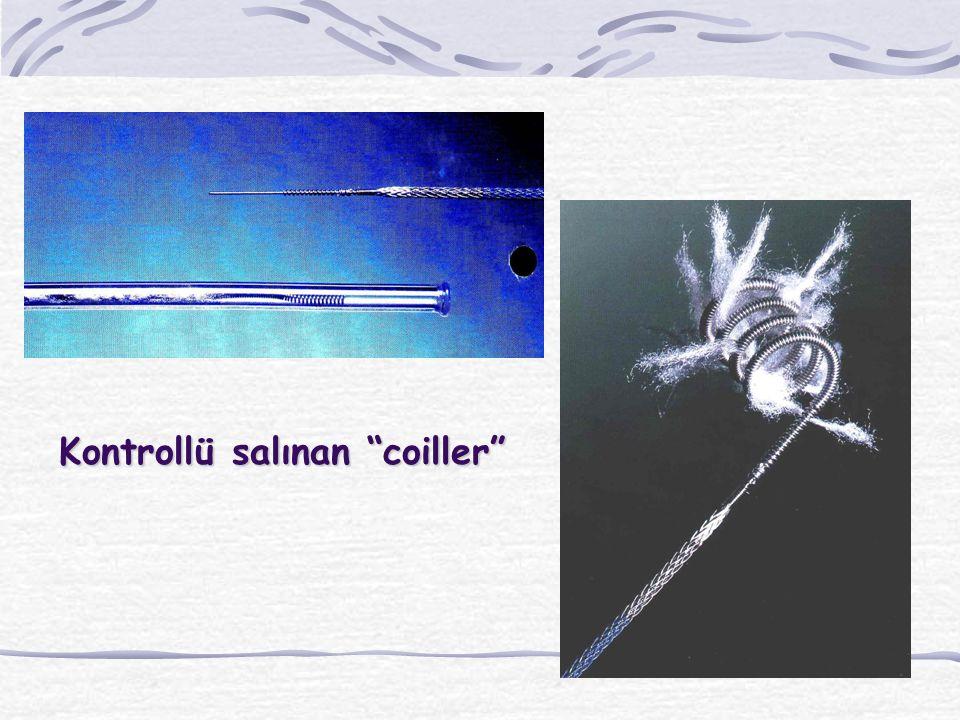 """Kontrollü salınan """"coiller"""""""