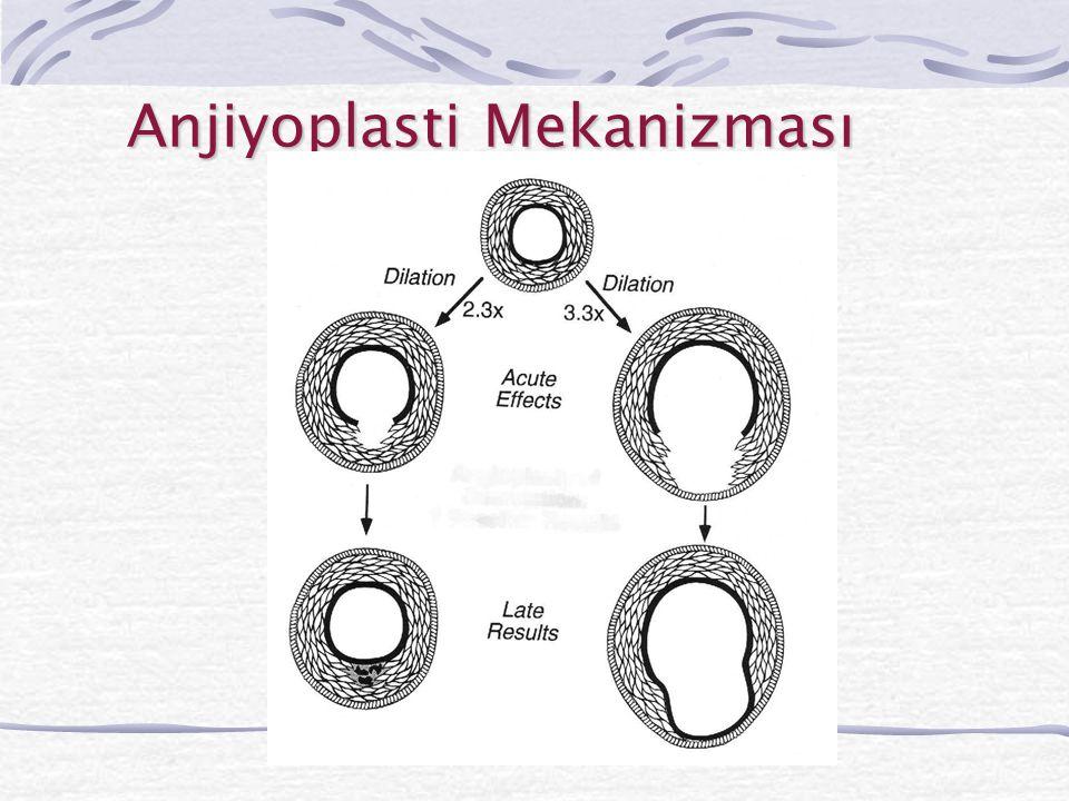 Helex  Profili küçüktür  Geri alınması kolaydır  Yuvarlak yapısı nedeniyle dokulara bası azdır  Büyük ASD'lerde kullanılması önerilmemektedir  İ mplant sayısı henüz azdır