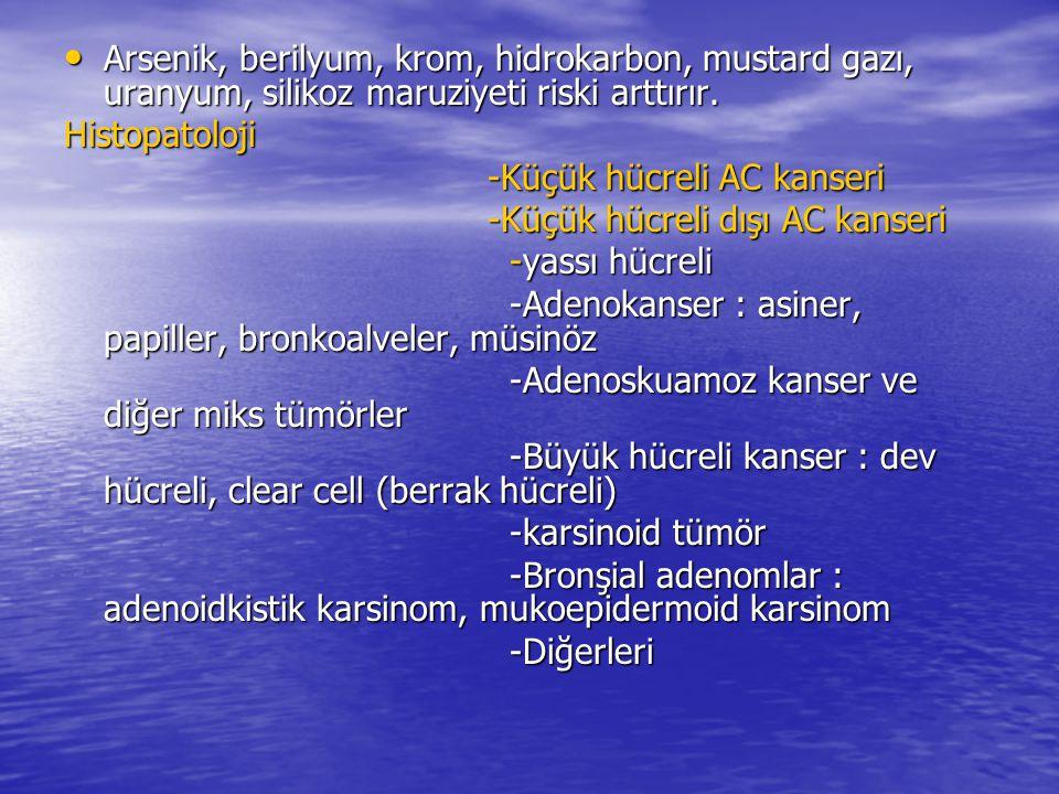 Arsenik, berilyum, krom, hidrokarbon, mustard gazı, uranyum, silikoz maruziyeti riski arttırır. Arsenik, berilyum, krom, hidrokarbon, mustard gazı, ur