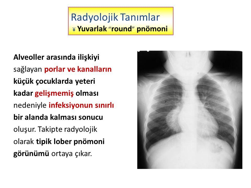 Anatomik olarak bir veya birden fazla akciğer lobunun tutulduğu, radyolojik olarak küçük periferal infiltrasyondan, tutulan lobun tümünün konsolide olmasına kadar olan spektrumu içerir.