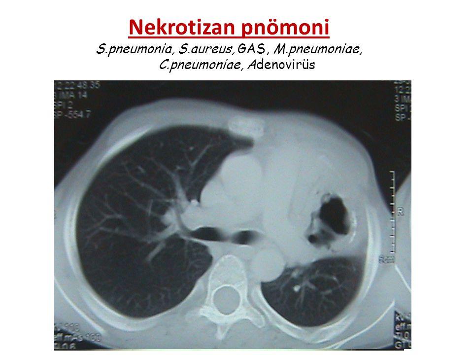 Pnömatosel ve pnömotoraks : S.aureus'a bağlı pnömonilerde sık.