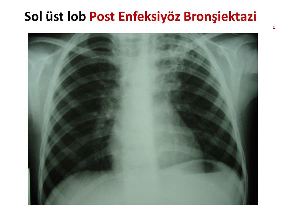 Nekrotizan pnömoni S.pneumonia, S.aureus, GAS, M.pneumoniae, C.pneumoniae, Adenovirüs