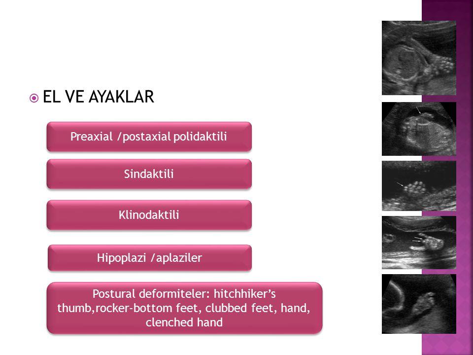  EL VE AYAKLAR Preaxial /postaxial polidaktili Sindaktili Klinodaktili Postural deformiteler: hitchhiker's thumb,rocker-bottom feet, clubbed feet, ha