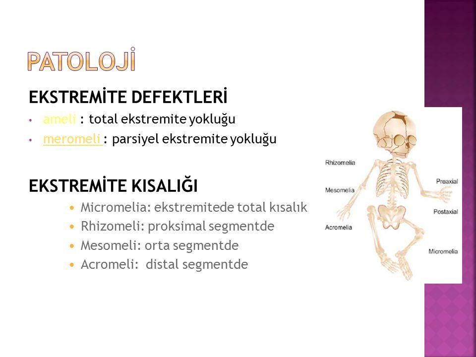 EKSTREMİTE DEFEKTLERİ ameli : total ekstremite yokluğu meromeli : parsiyel ekstremite yokluğu meromeli EKSTREMİTE KISALIĞI Micromelia: ekstremitede to