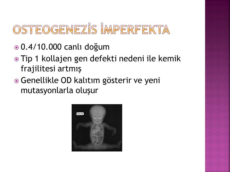  0.4/10.000 canlı doğum  Tip 1 kollajen gen defekti nedeni ile kemik frajilitesi artmış  Genellikle OD kalıtım gösterir ve yeni mutasyonlarla oluşu