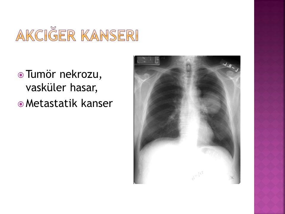  Tumör nekrozu, vasküler hasar,  Metastatik kanser