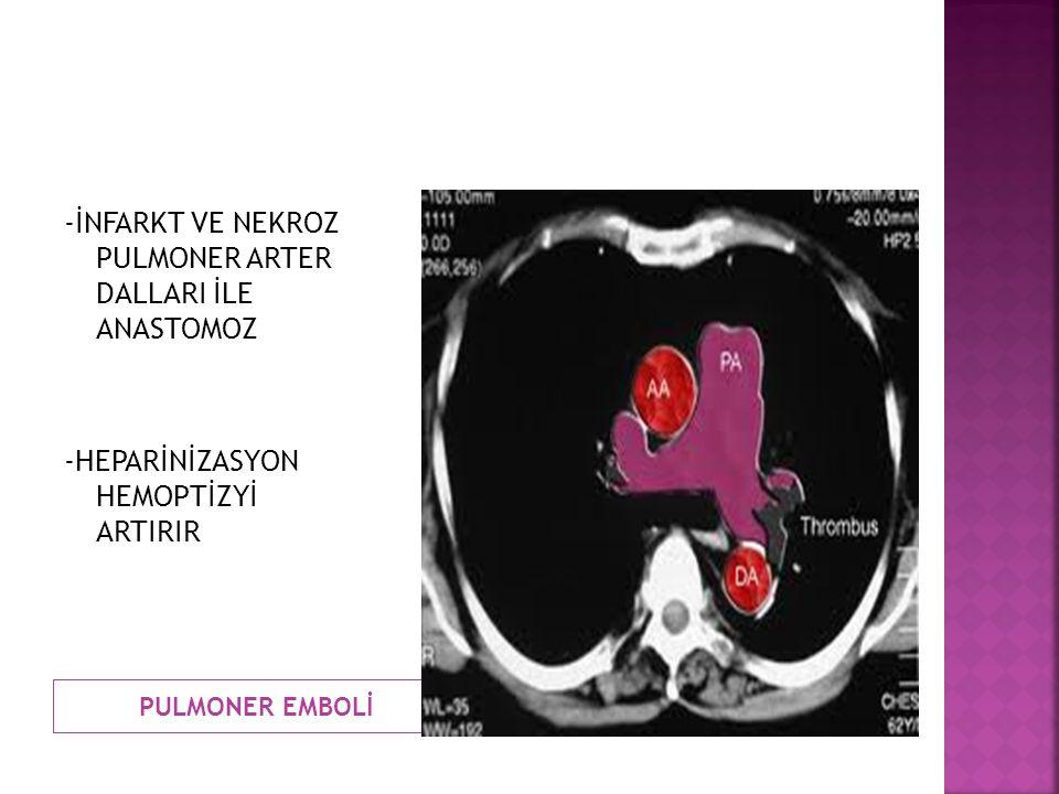PULMONER EMBOLİ -İNFARKT VE NEKROZ PULMONER ARTER DALLARI İLE ANASTOMOZ -HEPARİNİZASYON HEMOPTİZYİ ARTIRIR