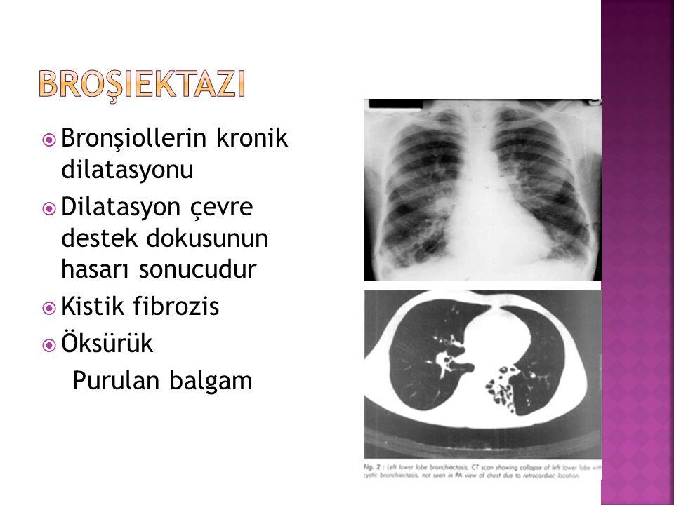  Bronşiollerin kronik dilatasyonu  Dilatasyon çevre destek dokusunun hasarı sonucudur  Kistik fibrozis  Öksürük Purulan balgam