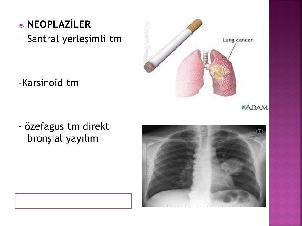  NEOPLAZİLER - Santral yerleşimli tm -Karsinoid tm - özefagus tm direkt bronşial yayılım