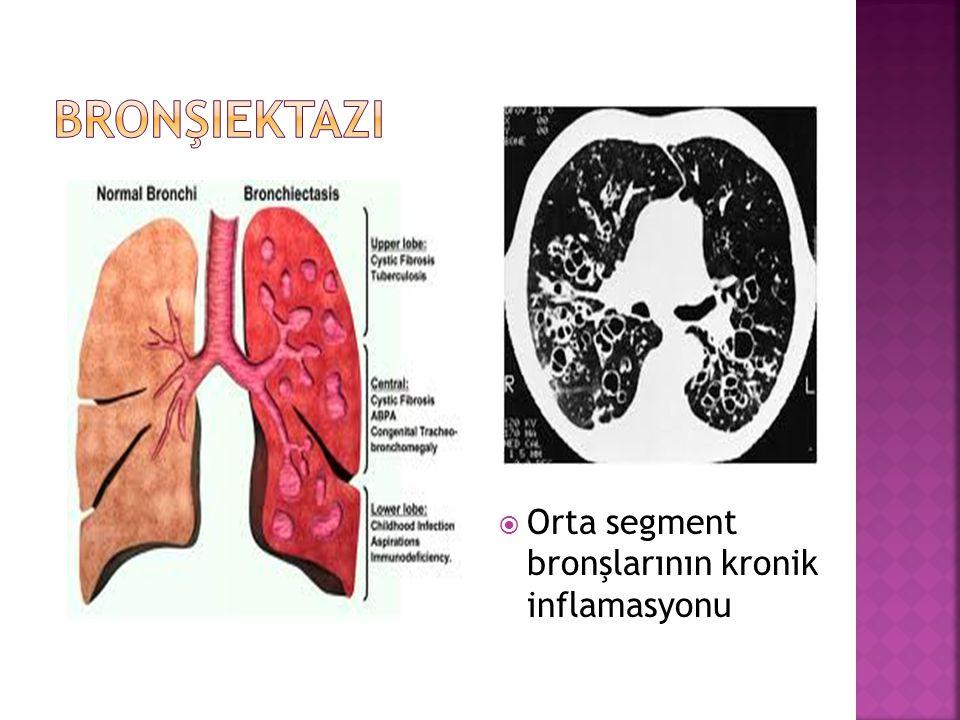  Orta segment bronşlarının kronik inflamasyonu