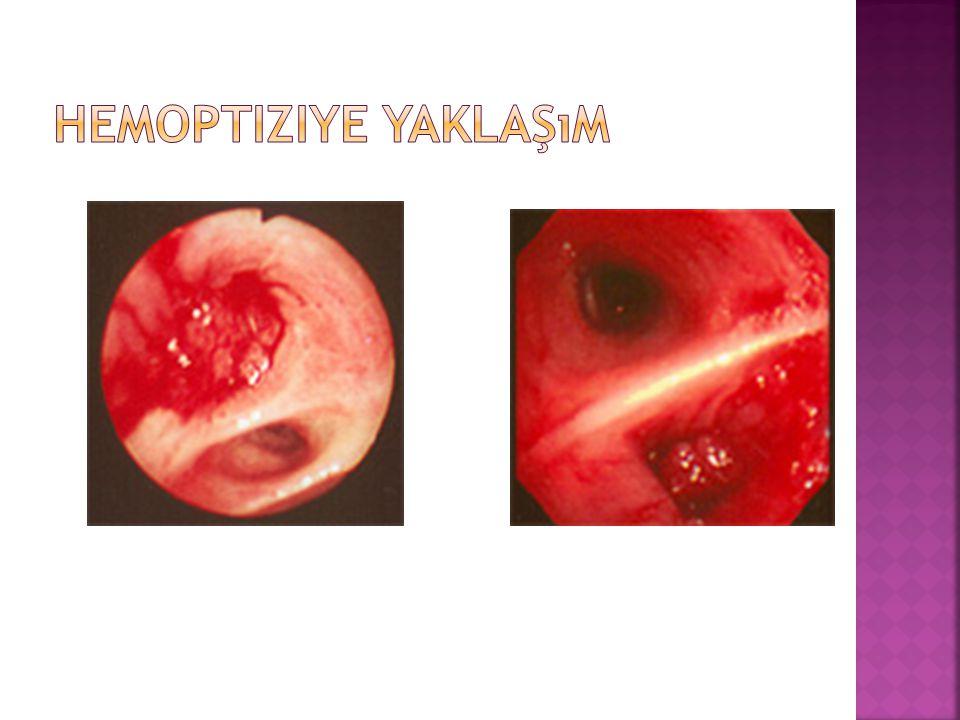  AMAÇ 1-Asfiksinin önlenmesi 2-Kanama bölgesinin lokalizasyonu 3-Hemorajinin durdurulması 4-Hemoptizi sebebinin belirlenmesi 5-Hemoptizinin kesin olarak tedavi edilmesi