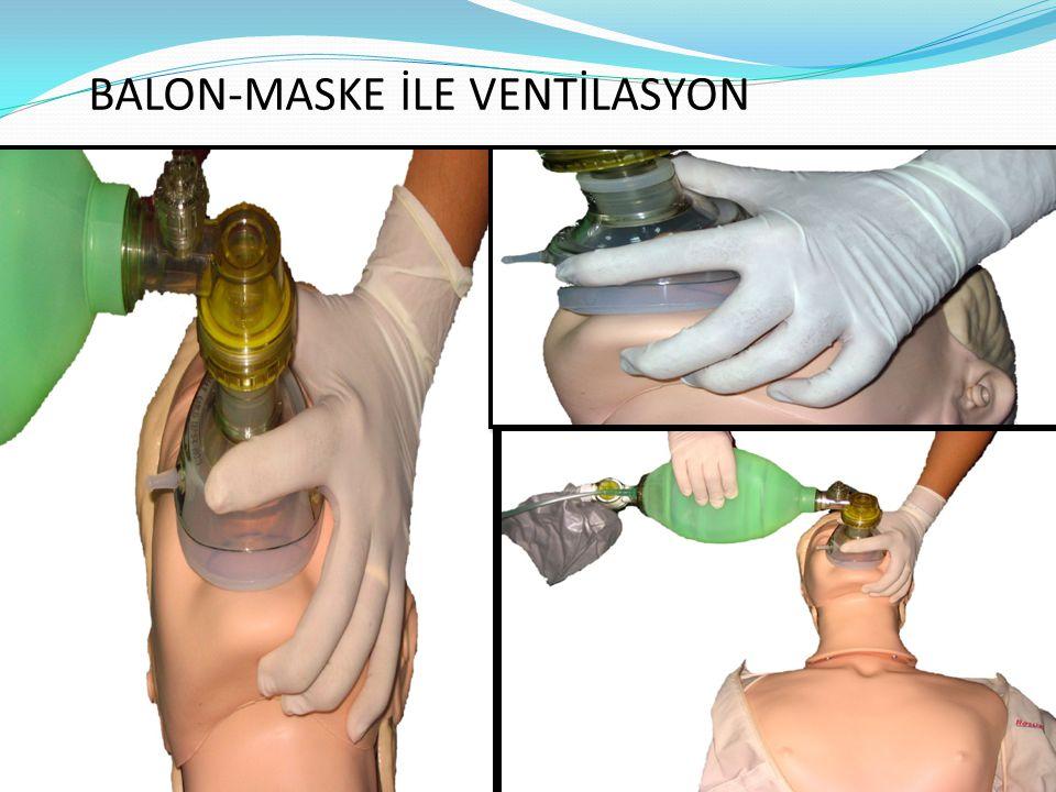 BALON-MASKE İLE VENTİLASYON
