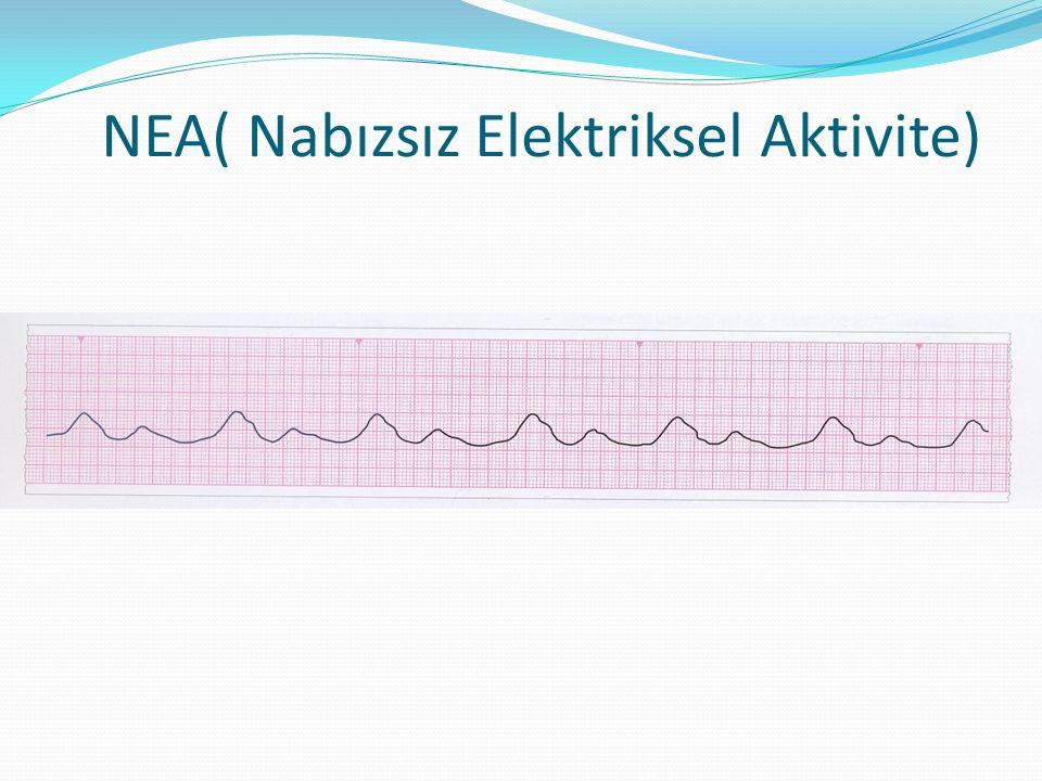 NEA( Nabızsız Elektriksel Aktivite)