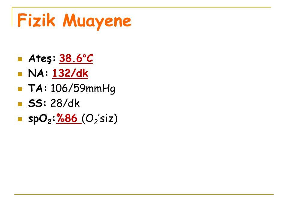 Fizik Muayene Ateş: 38.6°C NA: 132/dk TA: 106/59mmHg SS: 28/dk spO 2 :%86 (O 2 'siz)