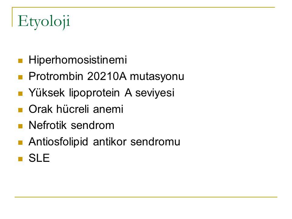 Etyoloji Hiperhomosistinemi Protrombin 20210A mutasyonu Yüksek lipoprotein A seviyesi Orak hücreli anemi Nefrotik sendrom Antiosfolipid antikor sendro