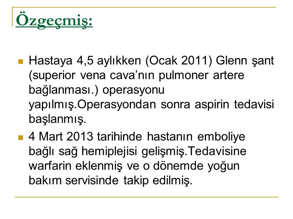 Özgeçmiş: Hastaya 4,5 aylıkken (Ocak 2011) Glenn şant (superior vena cava'nın pulmoner artere bağlanması.) operasyonu yapılmış.Operasyondan sonra aspi