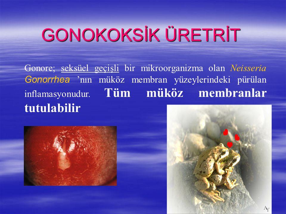 Gonore; seksüel geçişli bir mikroorganizma olan Neisseria Gonorrhea 'nın müköz membran yüzeylerindeki pürülan inflamasyonudur. Tüm müköz membranlar tu