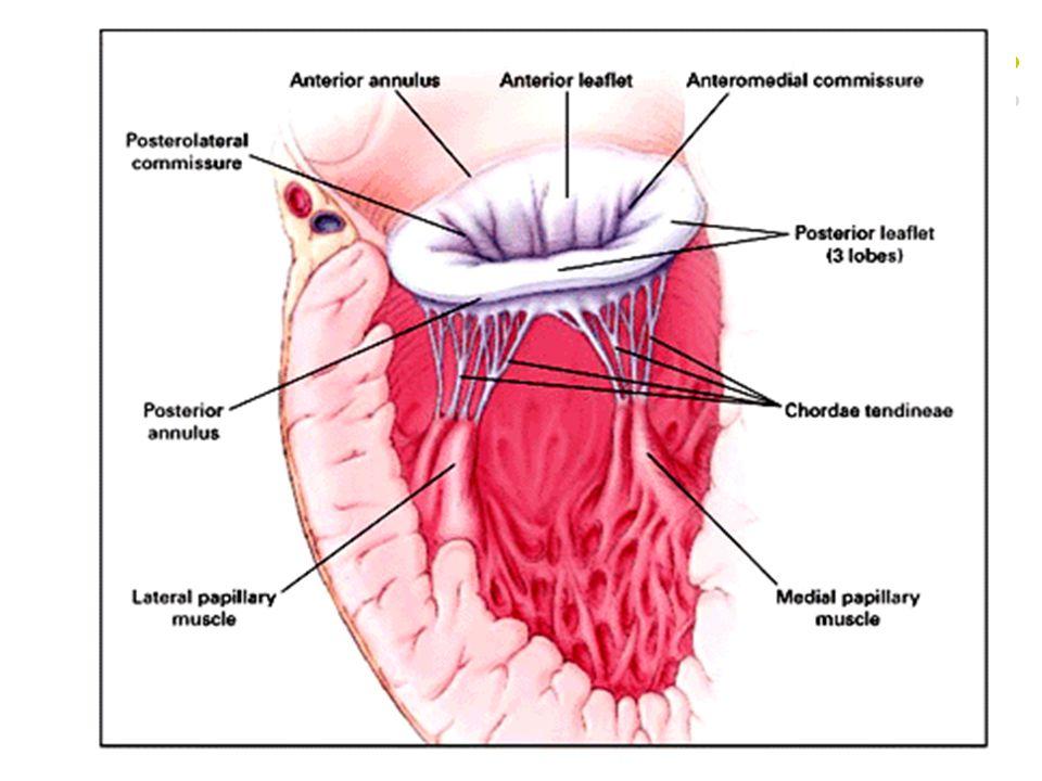 MS Fizyopatoloji Normal mitral kapak alanı: 4-5 cm² 2,5 cm² altında semptomatik >1,5 cm² Sinüs Ritminde dinlenim anında asemptomatik Transmitral flowda artış ya da diyastolik doluş zamanında azalma olursa semptom ortaya çıkar (Egzersiz, emosyonel stres, infeksiyon, hamilelik, hızlı ventrikül yanıtlı AF gibi) Progresive, stabil seyredip ileriki yıllarda hızlı artış gösterir Romatizmal hastalıktan sonra 20-40 yıl latent periyodu var Semptomatik MS'un başlangıç semptomuna bağlı olarak 10 yıllık survi %50-60 Asemptomatik olgularda survival >%80 Semptomlarında progresyon olmayan olgularda %60 Sınırlayıcı semptomu olanlarda 10 yıllık survival %0-15 Ciddi pulmoner HT gelişenlerde beklenen yaşam 3 yıl