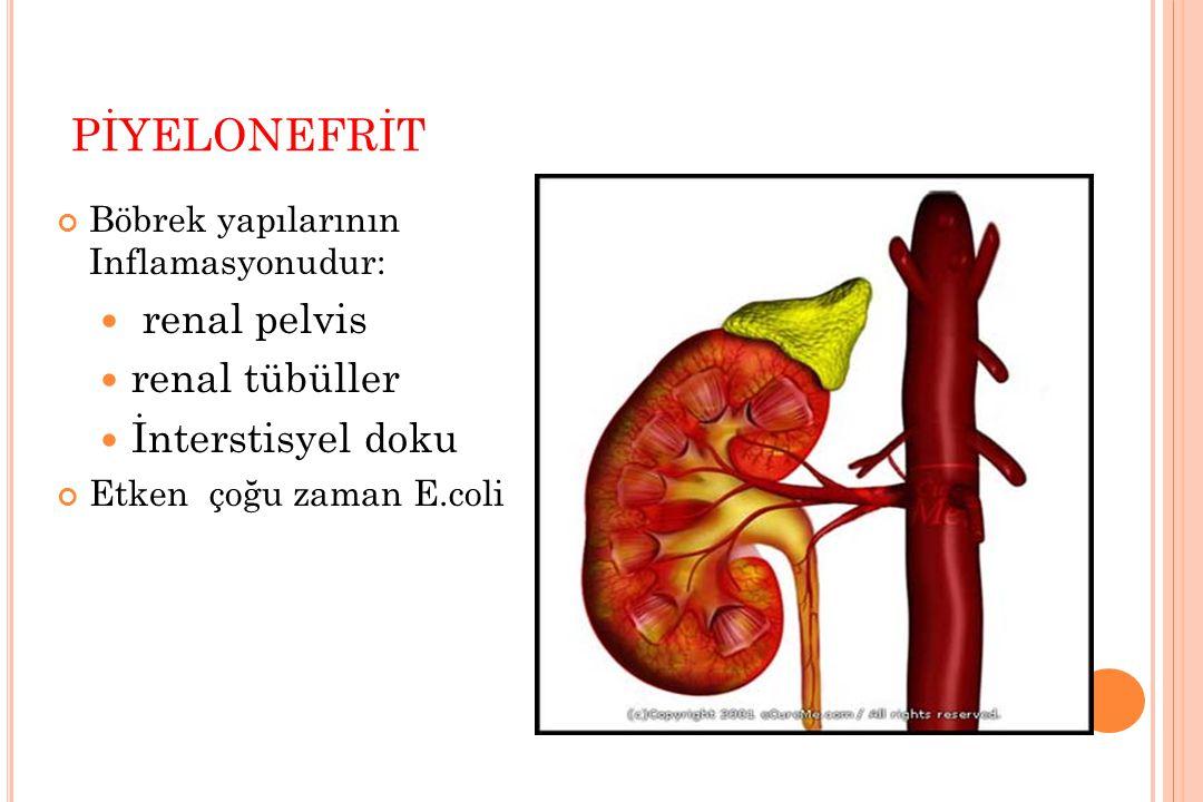 PİYELONEFRİT Böbrek yapılarının Inflamasyonudur: renal pelvis renal tübüller İnterstisyel doku Etken çoğu zaman E.coli