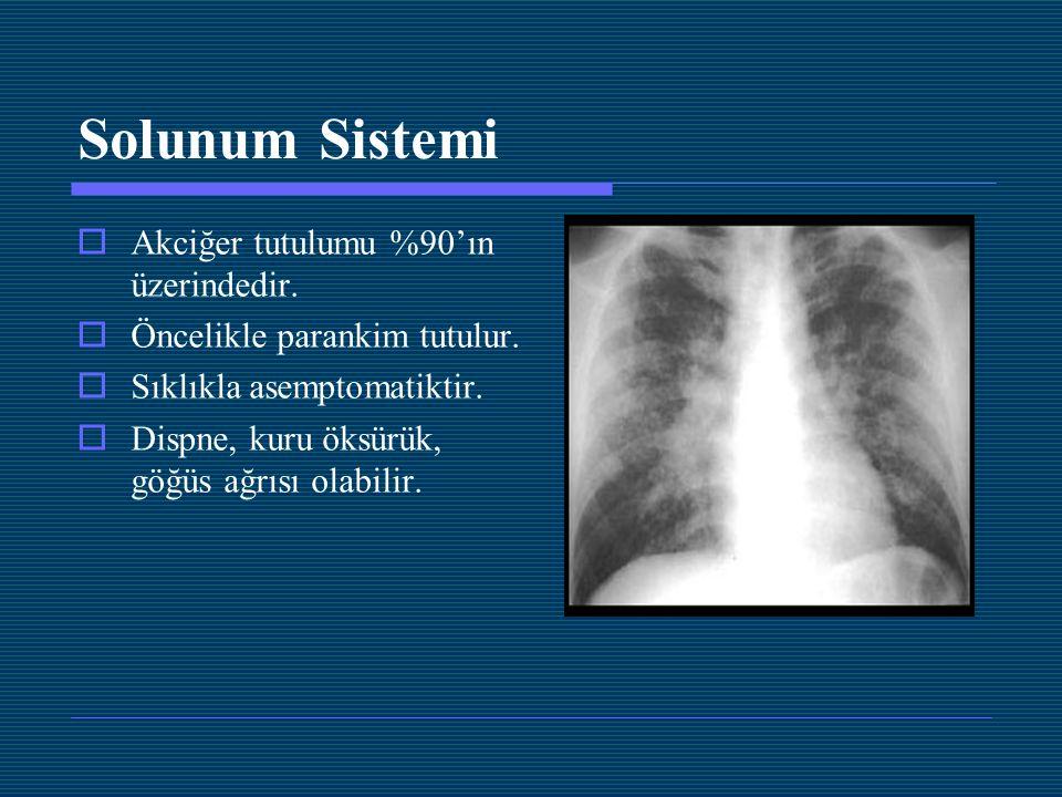 Solunum Sistemi  Akciğer tutulumu %90'ın üzerindedir.  Öncelikle parankim tutulur.  Sıklıkla asemptomatiktir.  Dispne, kuru öksürük, göğüs ağrısı