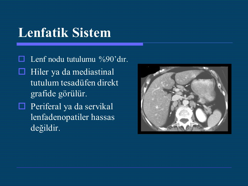 Lenfatik Sistem  Lenf nodu tutulumu %90'dır.  Hiler ya da mediastinal tutulum tesadüfen direkt grafide görülür.  Periferal ya da servikal lenfadeno