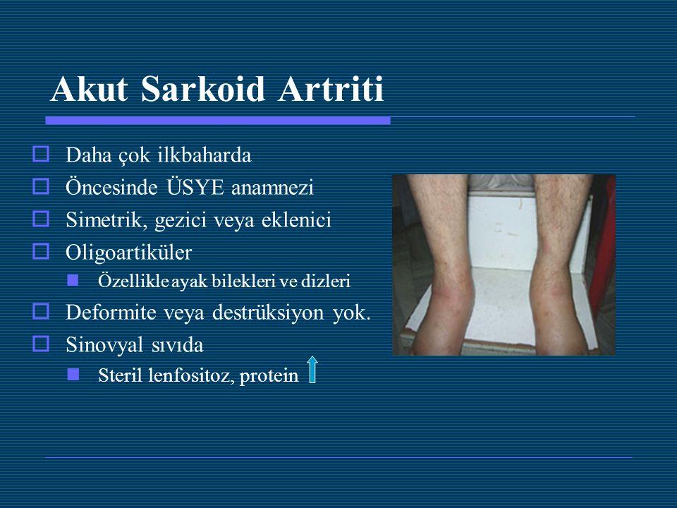 Akut Sarkoid Artriti  Daha çok ilkbaharda  Öncesinde ÜSYE anamnezi  Simetrik, gezici veya eklenici  Oligoartiküler Özellikle ayak bilekleri ve diz