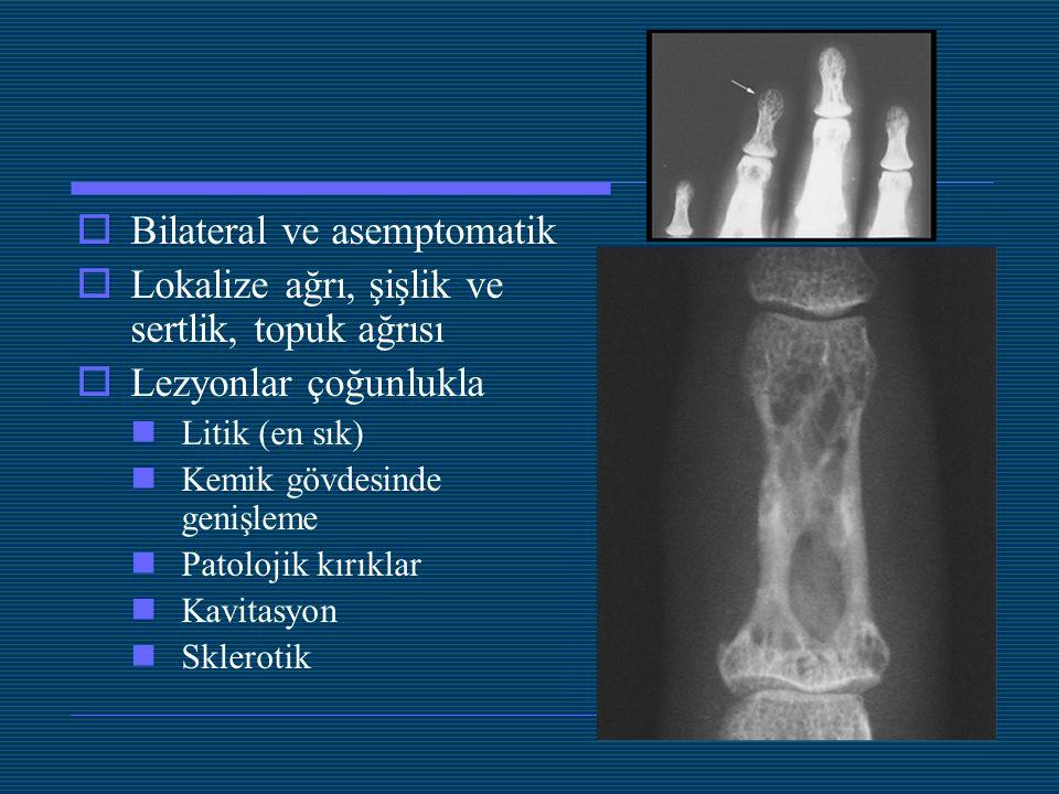 Bilateral ve asemptomatik  Lokalize ağrı, şişlik ve sertlik, topuk ağrısı  Lezyonlar çoğunlukla Litik (en sık) Kemik gövdesinde genişleme Patoloji