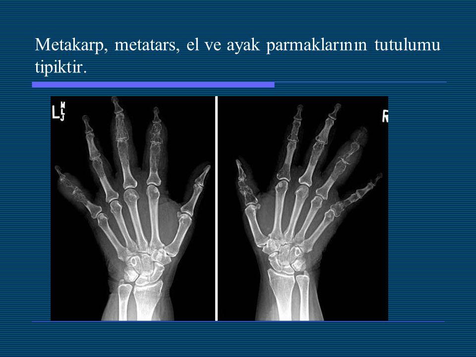 Metakarp, metatars, el ve ayak parmaklarının tutulumu tipiktir.